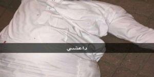 الاعتداء على مواطن عشريني في القطيف بدعوى انتمائه لداعش