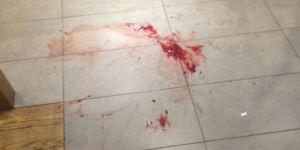 مصادر: مقتل عاملة منزلية على يد مواطنة في محافظة العلا