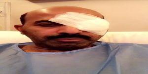 الممثل الكويتي طارق العلي يجري عملية في العين